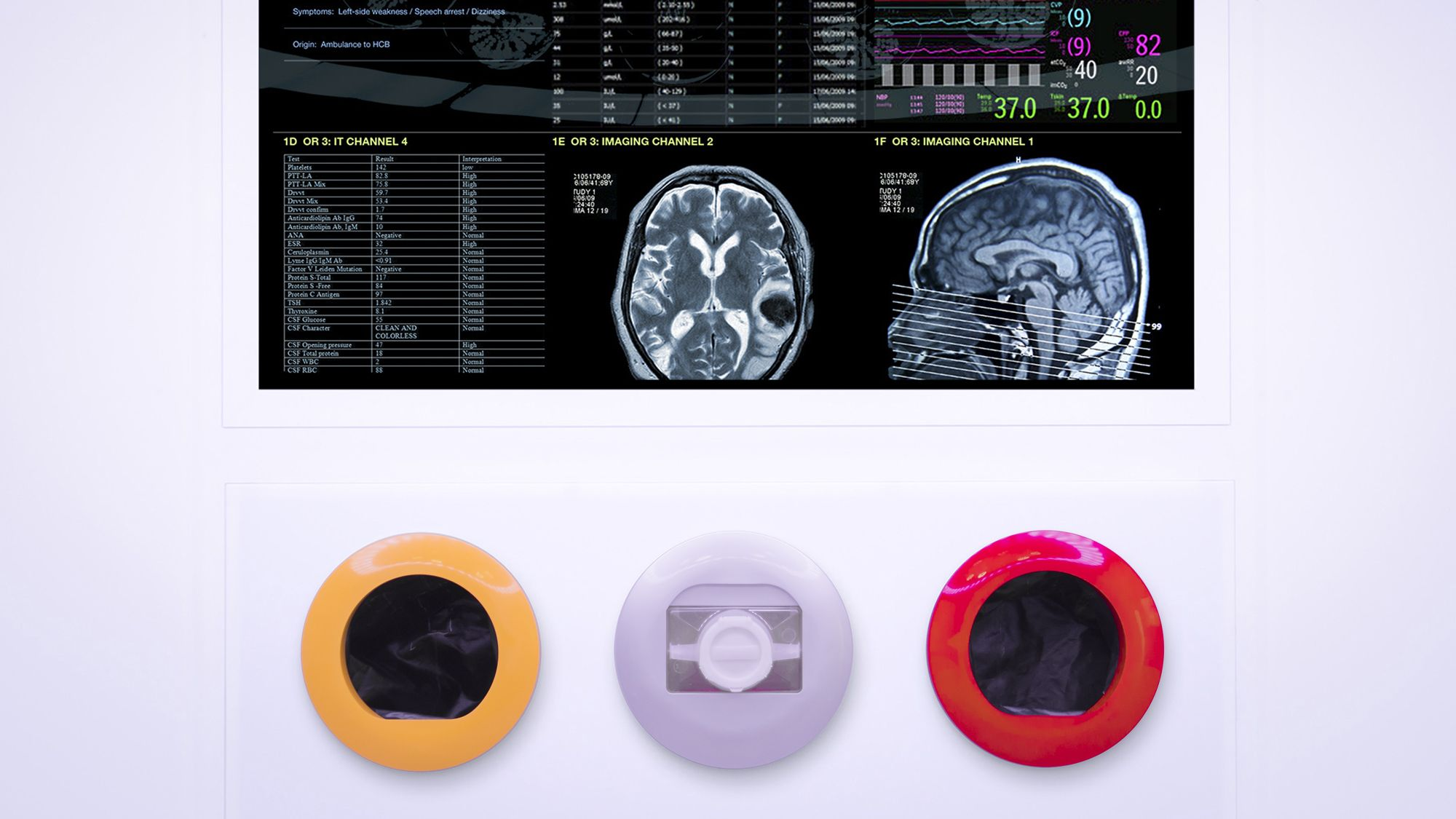 The Operating Room Of The Future Design Philosophy